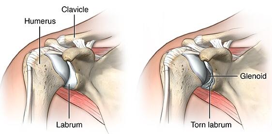 Scinq Guide To Baseball Injuries  Torn Labrum  U2013 Scientific