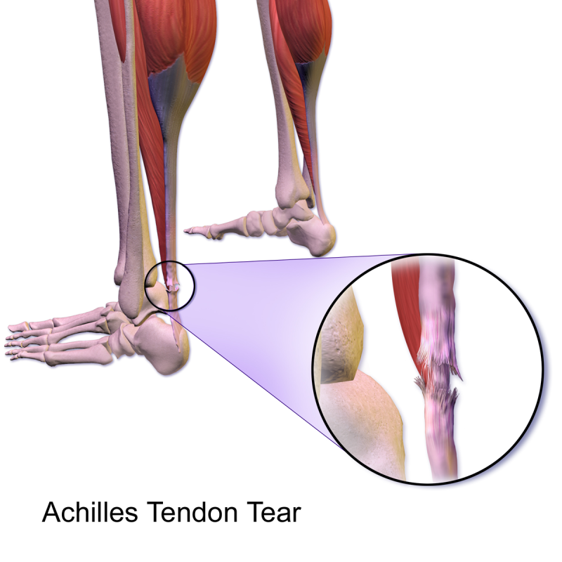Achilles_Tendon_Tear